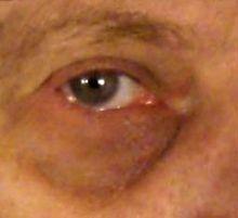 Dunkle Augenringe Ursachen