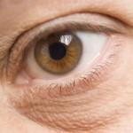 Was sind die Ursachen von geschwollenen Augen?