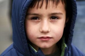 Wieso hat mein Kind Augenringe?